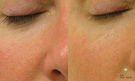 Large-Pores-Treatment