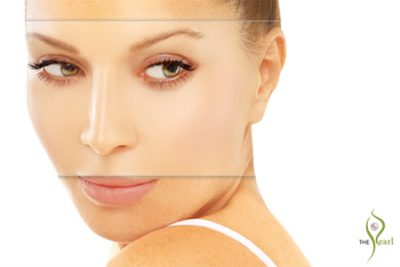 melasma treatment علاج الكلف