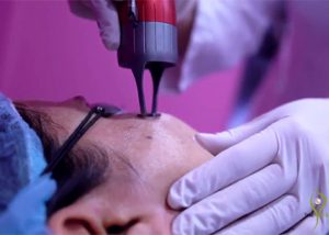 large pores treatment Dermatology Clinic Laser Center Clinic and Skin Care