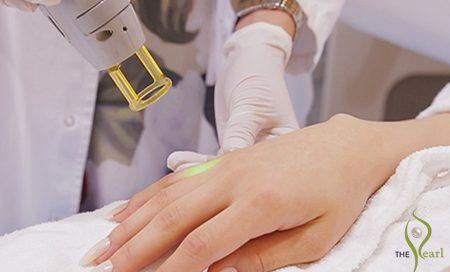 laser hair removal in doha qatar