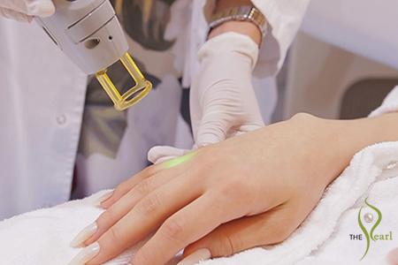 laser hair removal doha
