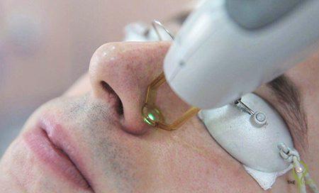 varicose vein removal علاج تمدد الشعيرات الدموية