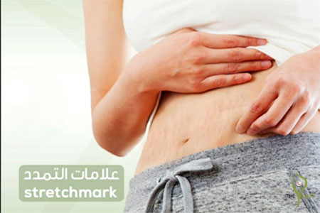 stretchmarks-pearl-dermatology Dermatology Clinic Laser Center Clinic and Skin Care
