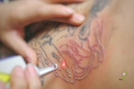 tattoo removal Dermatology Clinic Laser Center Clinic and Skin Care