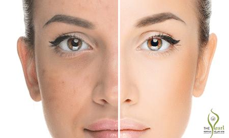 Laser-Skins Resurfacing